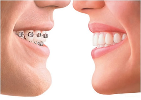 The most popular orthodontic treatments